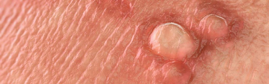 lečenje polnih bradavica - kondiloma
